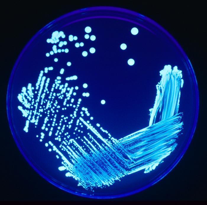 Legionella_Plate